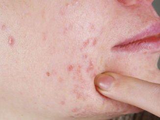 Pflege bei unreiner Haut