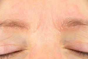 Schuppige Augenbrauen: Ursache und Tipps zur Behandlung