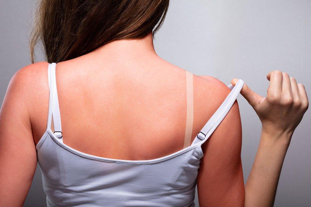 Hausmittel und Tipps bei Sonnenbrand
