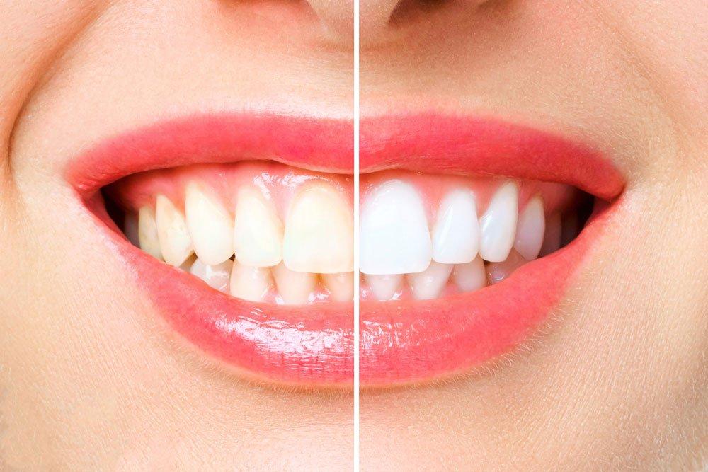 Bleaching Zähne