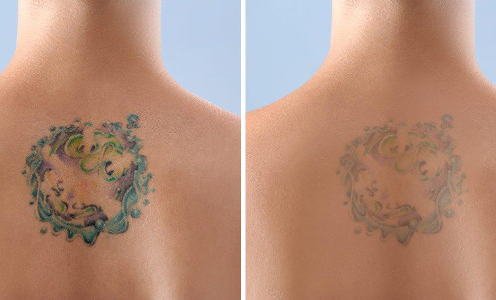 Tattoo entfernen mit Enzympeeling