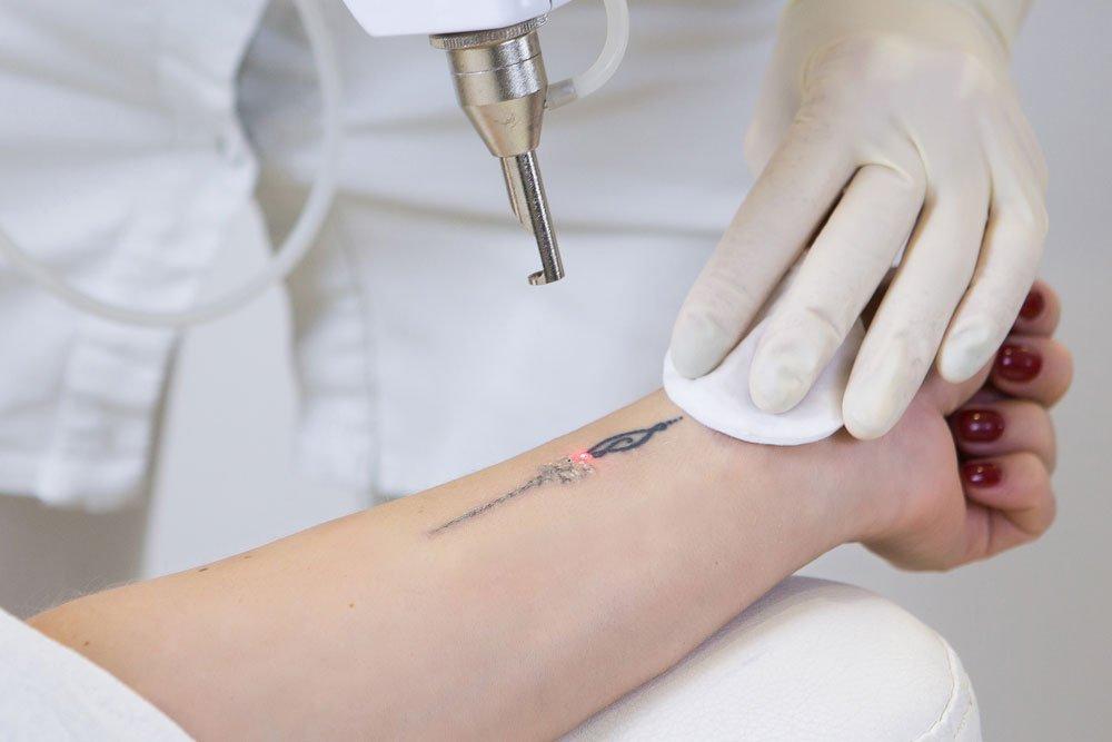 Tattoo Laser